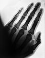Xray photograph; the hand of a healthy adult. Wellcome L0011549.jpg
