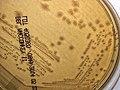 Yersinia pseudotuberculosis colonies MAC.jpg