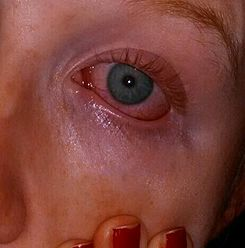 Actinic conjunctivitis causes a redness of the eyes, as well as swelling and often grayness around the eyes- 2014-05-21 23-27.JPG