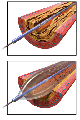Angioplasty - Balloon Inflated with Stent