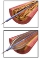 Angioplasty - Balloon Inflated with Stent.png