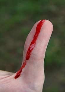 Bleeding wound on thumb.jpg