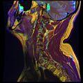 Cervical MRI R T1WFSE G T2WfrFSE STIR B 14.jpg