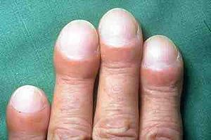 Clubbing of fingers in IPF.jpg
