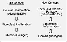 Etiology and pathobiology of Idiopathic Pulmonary Fibrosis (IPF)