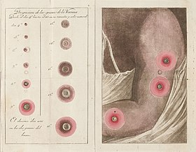 Fold out colour plate showing vaccination scars Wellcome L0041064.jpg