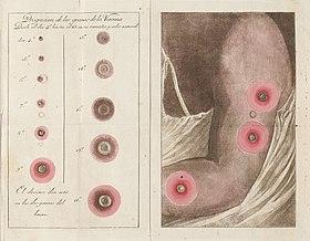 症状 天然 痘
