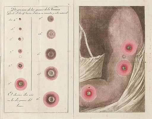 Fold out colour plate showing vaccination scars Wellcome L0041064