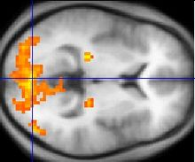 Monochrome fMRI image of a horizontal cross-section of a human brain. A few regions, mostly to the rear, are highlighted in orange and yellow.
