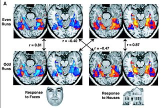 Functional magnetic resonance imaging - These fMRI images are from a study showing parts of the brain lighting up on seeing houses and other parts on seeing faces. The 'r' values are correlations, with higher positive or negative values indicating a better match.