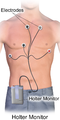 Holter Monitor.png