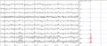 Human EEG with prominent alpha-rhythm.png