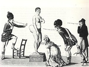Sarah Baartman - La Belle Hottentot, a 19th-century French print of Baartman