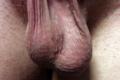 Loose human scrotum.png
