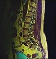 Lumbosacral MRI case 09 06.jpg