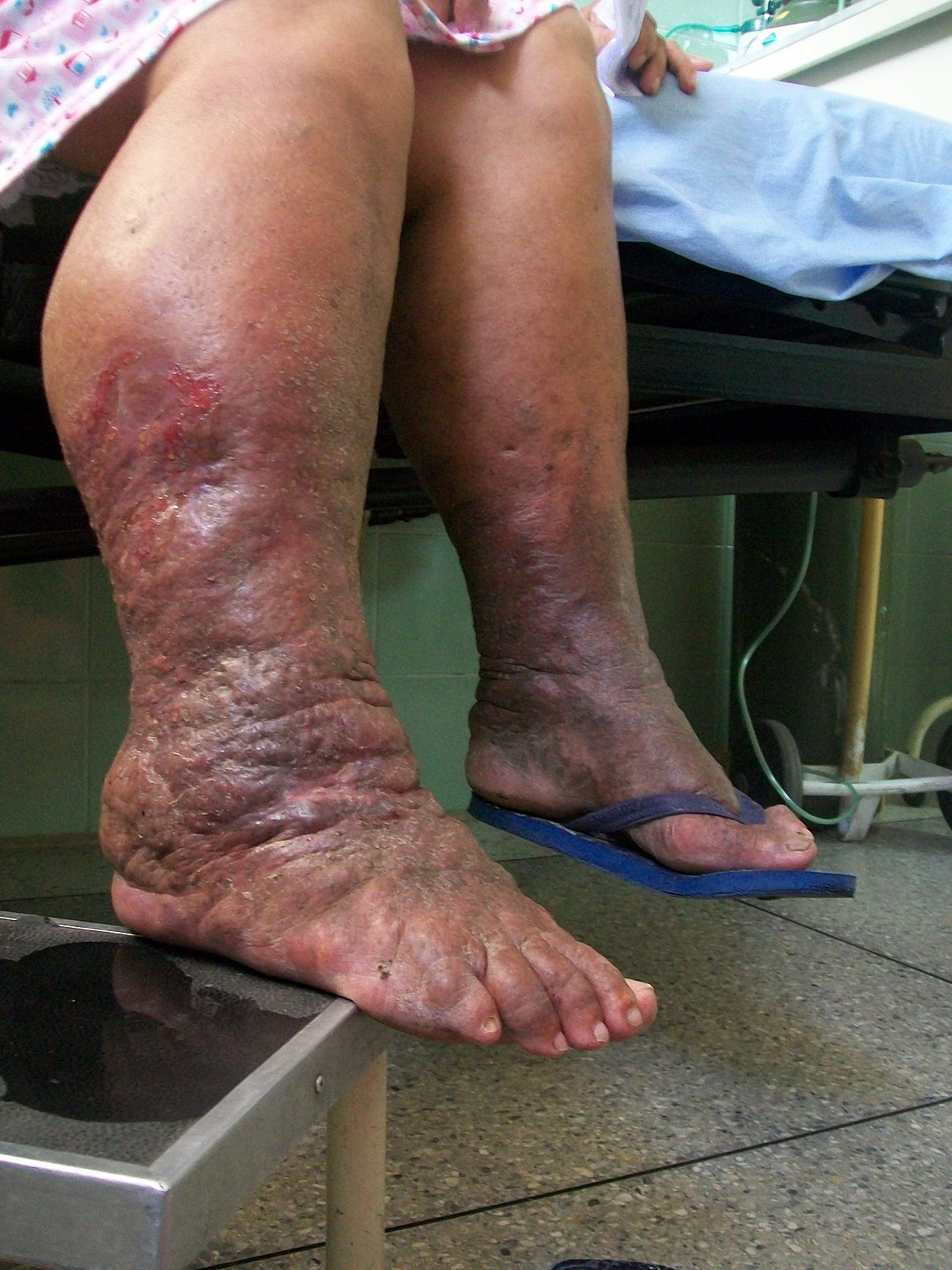 Lymphedema Wikipedia
