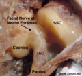 Middle cranial fossa surgical anatomy - J M Kartush.png