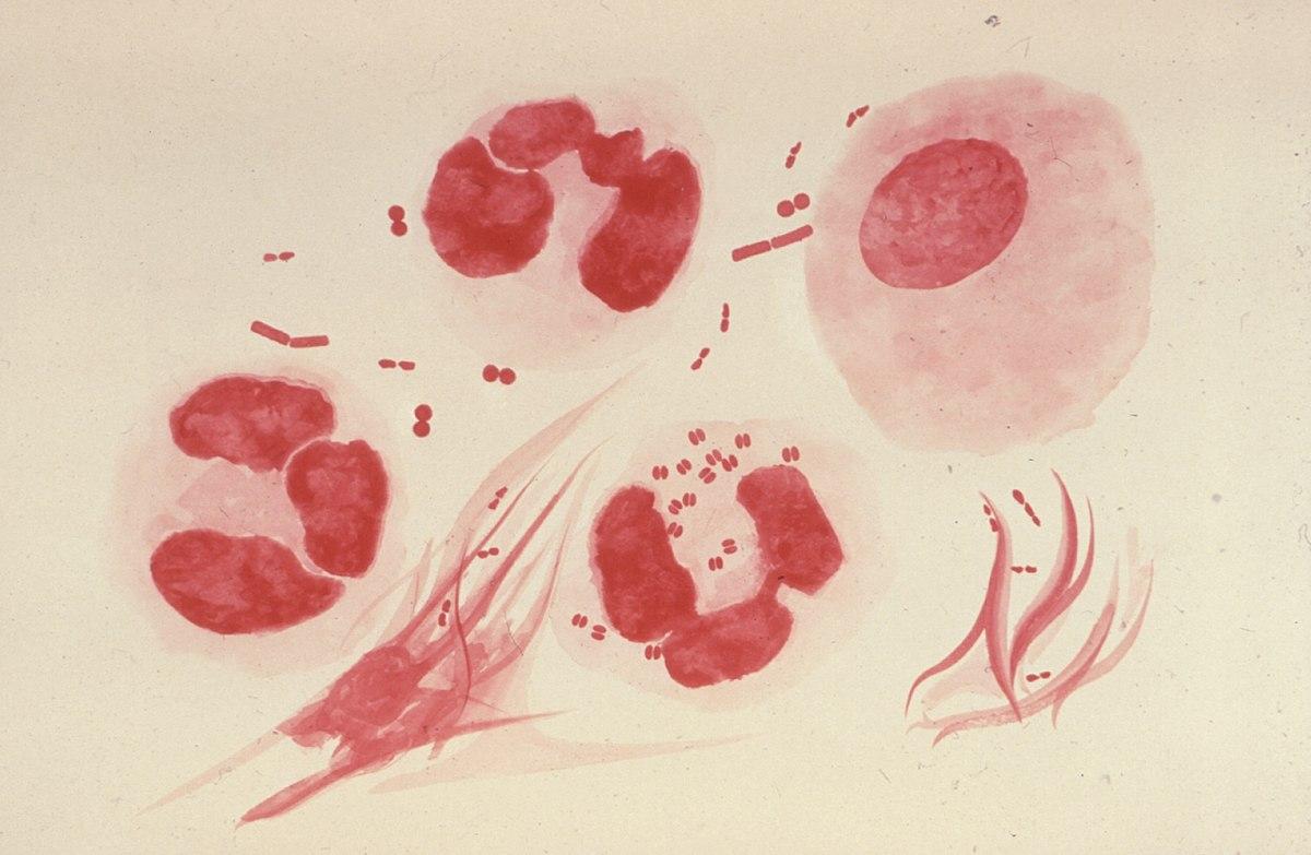 ¿Se puede transmitir una infección de próstata a una mujer?