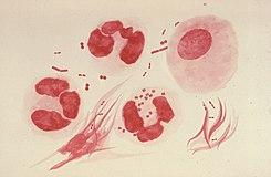 uretritis y pérdida de orina sin ardor