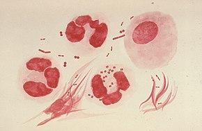 Dépistage de l'infection asymptomatique à gonocoque