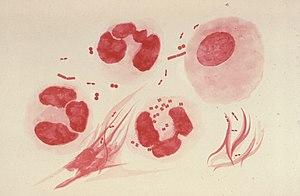This illustration depicts a urethral exudate c...