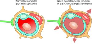 Konzepte Zur Uberwindung Der Blut Hirn Schranke Biologie
