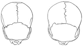 PSM V18 D766 Skulls from the philippines and andaman islands.jpg