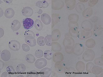 Pappenheimer bodies - Pappenheimer bodies (Peripheral Blood / May-Grünwald Giemsa and Prussian blue stain)