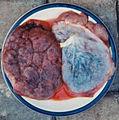 PlacentaPair.jpg