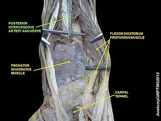 Posterior interosseous artery - Image: Slide 1VVVV