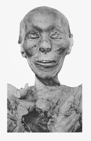 Thutmose II - The mummified head of Thutmose II