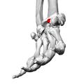 Tubercle of trapezium (left trapezium)05 distal view.png