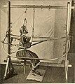Zur Pathologie und Therapie der kindlichen Skoliose und über die Unterscheidung einer habituellen und constitutionellen Form derselben - eine kritische und klinische Studie (1897) (14740917796).jpg