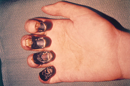 A hand showing how acral gangrene of the fingers due to bubonic plague causes the skin and flesh to die and turn black Acral gangrene due to plague.jpg