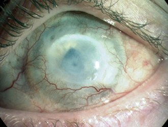 Chemical eye injury - An alkali burn to the human cornea can cause ocular surface failure with neovascularisation, opacification and blindness resulting from LESC deficiency.