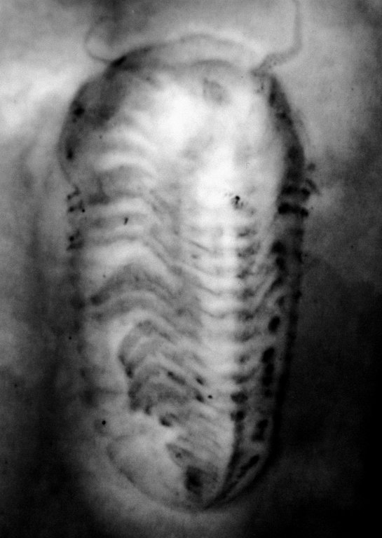 <b>Radiographie d'un fossile de <i>Chotecops ferdinandi</i> :</b> les pattes et les antennes sont bien visibles, Dévonien, Allemagne, Hunsrück Slate Lagerstätte.