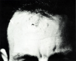 Coccidioidomycosis granulomas on forehead.png