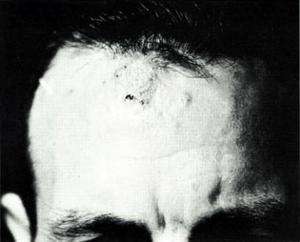 Coccidioidomycosis granulomas on forehead