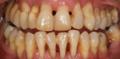 Conservative dentistry encias.png