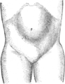 Corset1908 132Fig65.png
