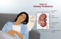 Depiction of types of kidney disease.png