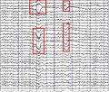 EEGScan.jpg