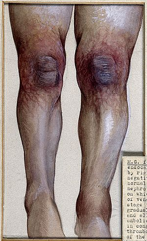 Gangrenous changes in the knees of a twenty three year old w Wellcome V0036375EL.jpg