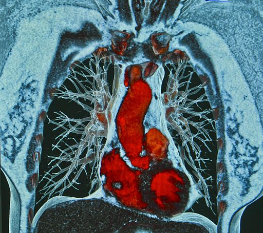 Heart and lung CT