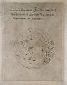 Hospital gangrene, fusiform bacillus and spirochetes. Drawin Wellcome V0018996EL.jpg