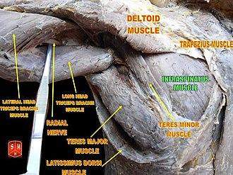 Infraspinatus muscle - Image: Infraspinatus muscle 1