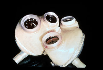 Cybernetics - An artificial heart, a product of biomedical engineering.
