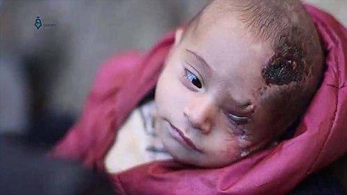 کریم عبدالله، کودک چهلروزه سوری که در اثر بمباران ارتش سوریه مجروح و مادرش را ازدست داد. ۲۹ اکتبر ۲۰۱۷