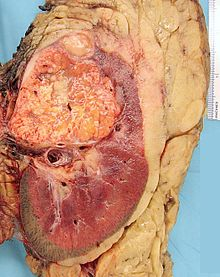 Renal Cell Carcinoma Wikipedia