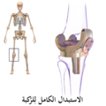 Knee Replacement-ar.png